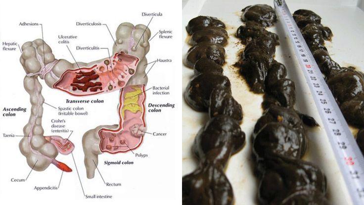 Eliminare toxine colon