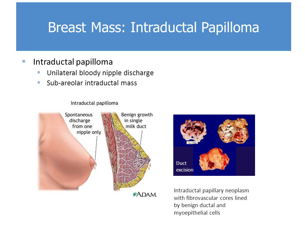 treatment for benign breast papilloma
