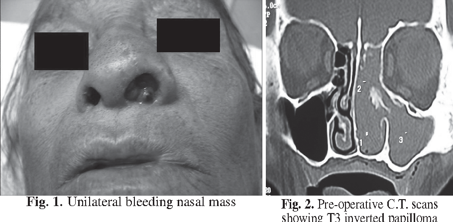 treatment for inverted papilloma sinus)