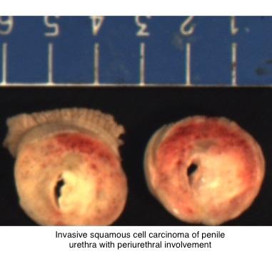 papiloma humano odontologia