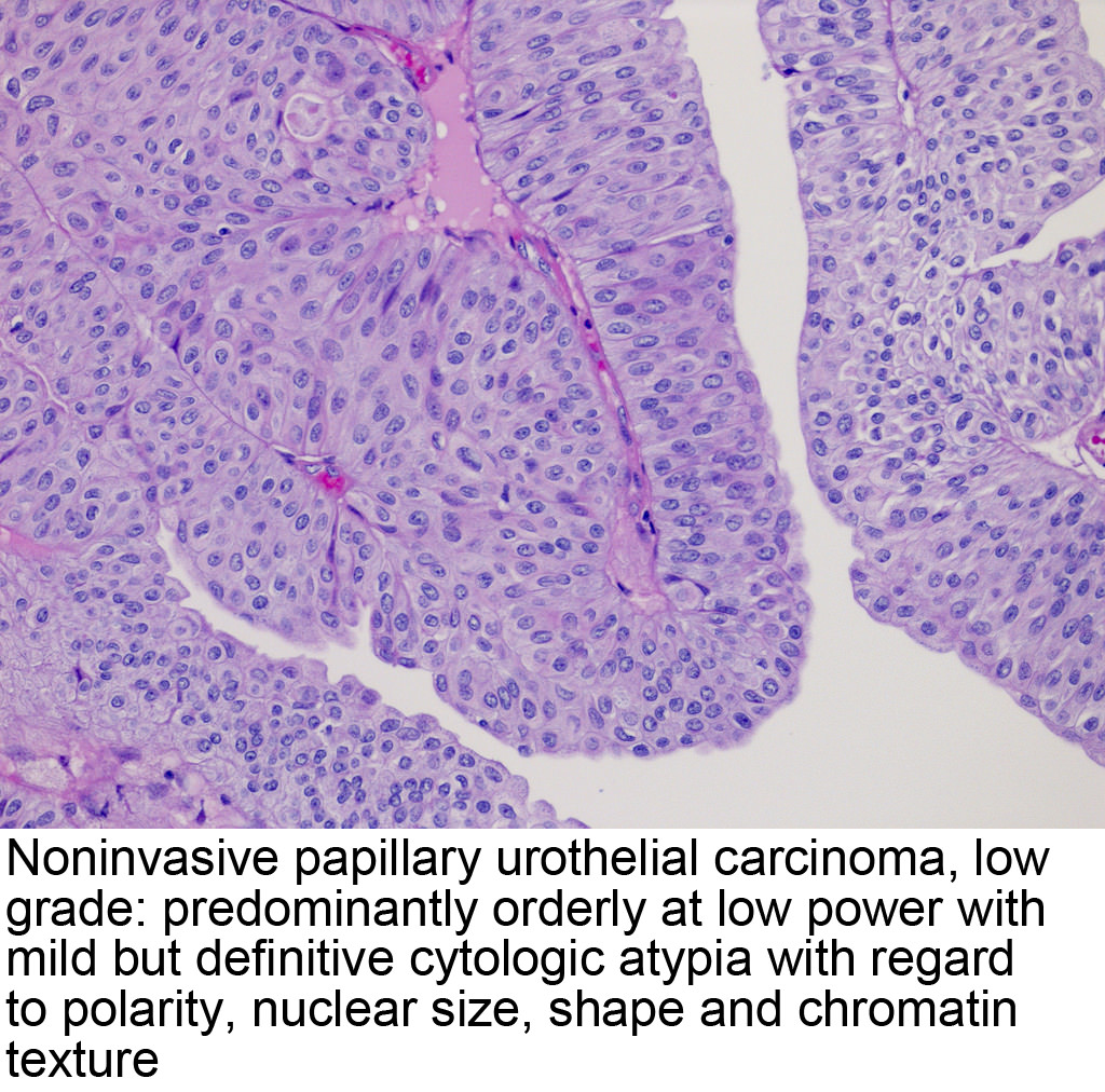 urothelial inverted papilloma pathology outlines)