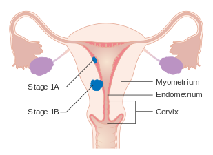 uterine cancer etiology)