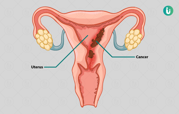 uterine cancer in hindi