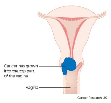 uterine cancer type 2