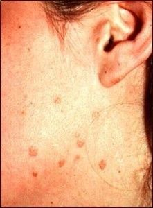 papillon zeugma relaxury fact sheet head and neck cancer caused by hpv