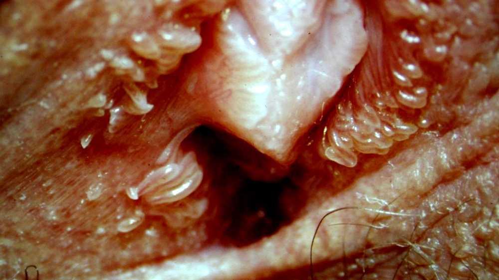 vestibular papillomatosis itchy and painful ovarian cancer natural treatment