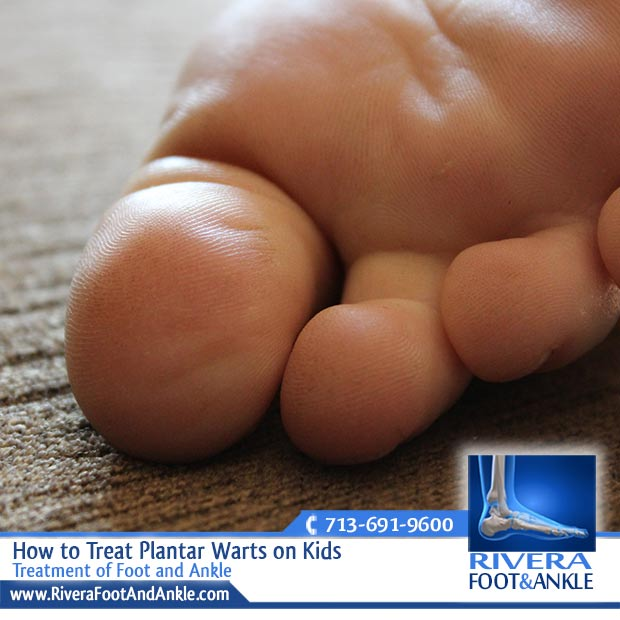 wart foot kid