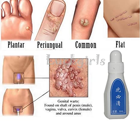 wart medicine on skin tags)