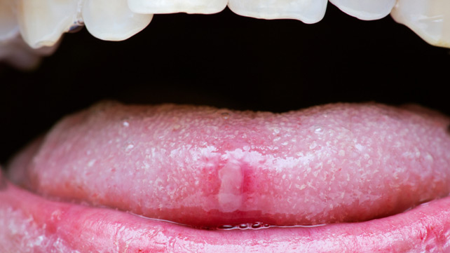wart on tongue tip)