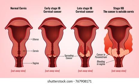 wart virus on cervix ce este cancerul neuroendocrin