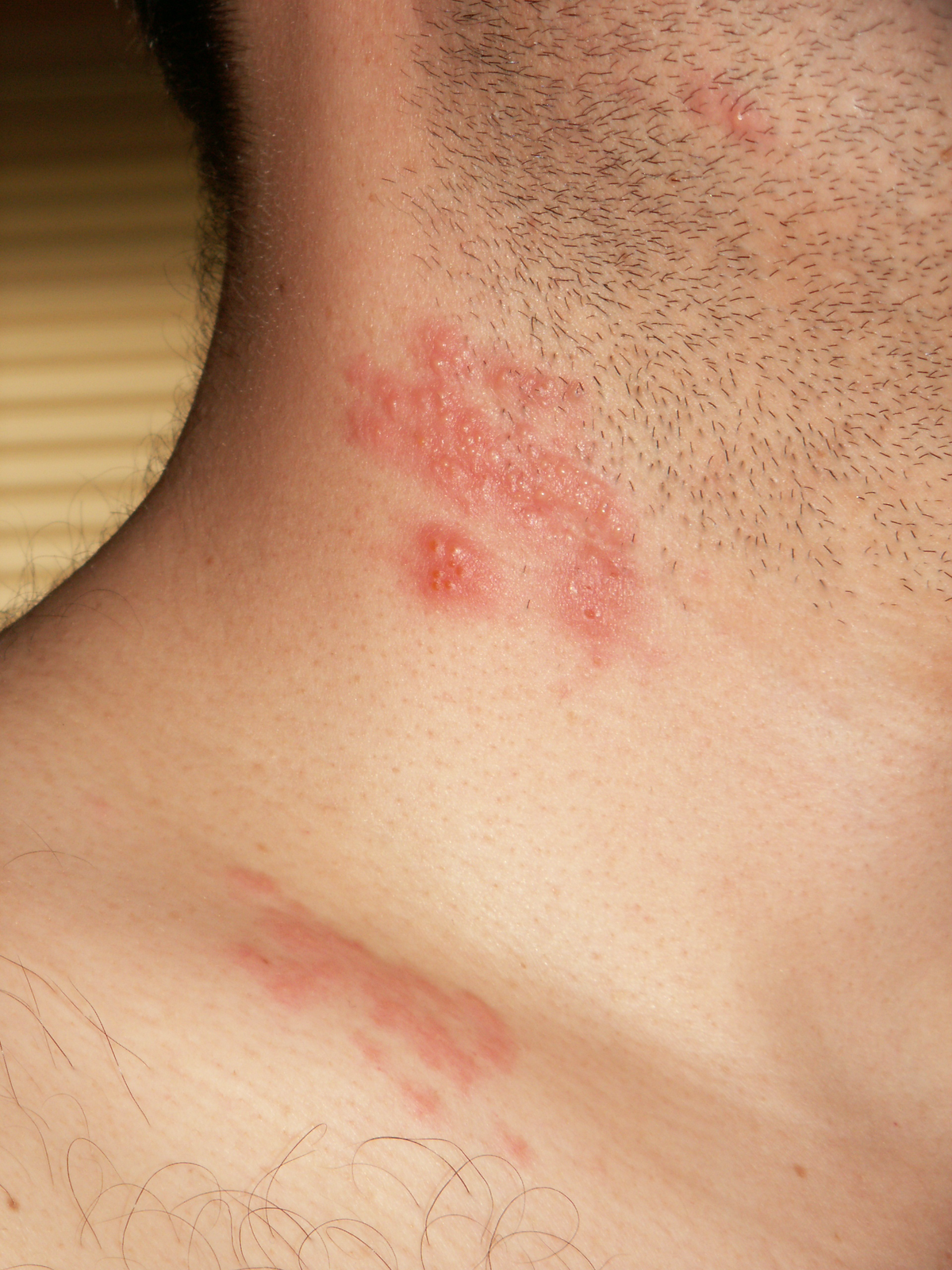 wart virus on neck