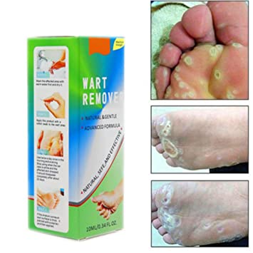 warts feet treatment