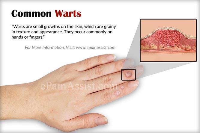 papilloma of skin icd 10 de unde știi dacă există paraziți în organism