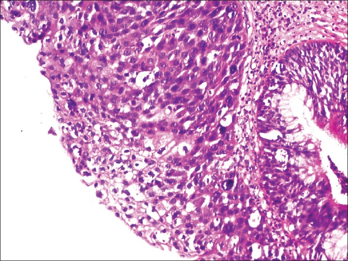 inverted papilloma squamous cell carcinoma)