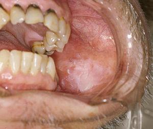 papilloma bordo linguale)