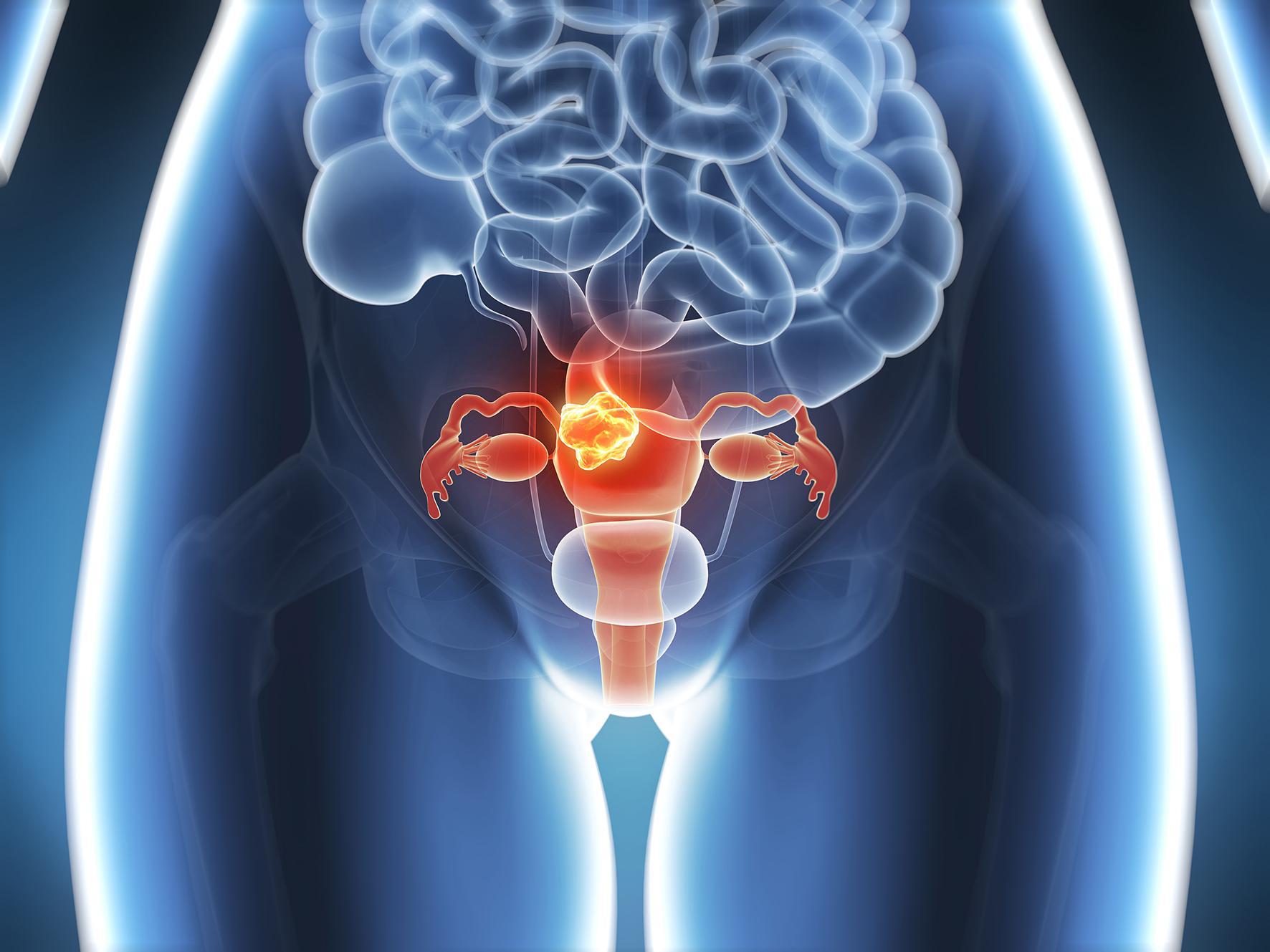 uterine cancer untreated