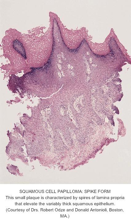 esophageal papilloma pathology)