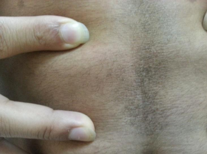confluent and reticulated papillomatosis groin)