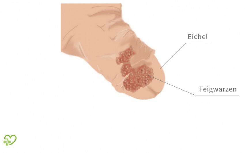 papillomavirus warzen entfernen