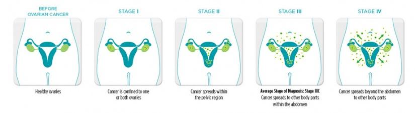 ovarian cancer abdominal tenderness que es el analisis papiloma