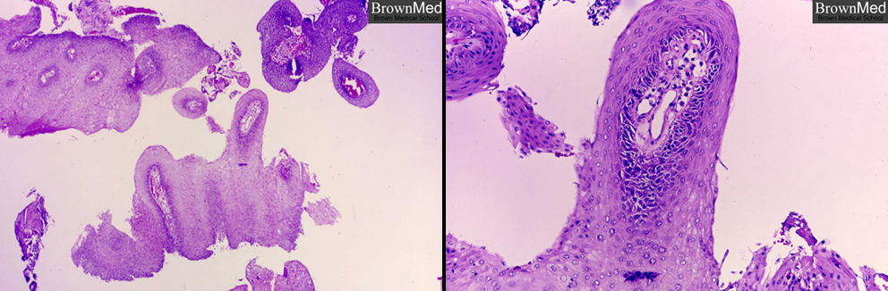 squamous papilloma larynx