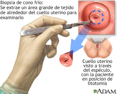 papiloma humano biopsia