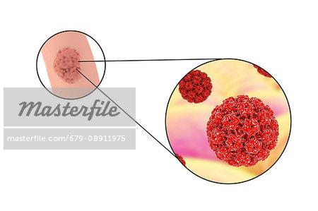 laryngeal papillomatosis meaning oxiuri intestinali