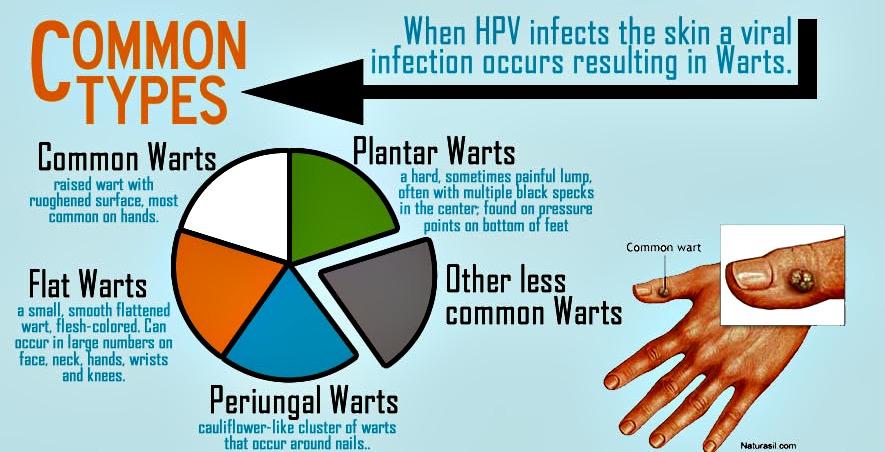 hpv genital warts strain)