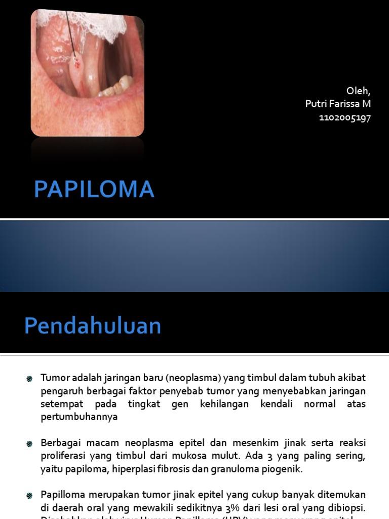 eksisi papiloma adalah)