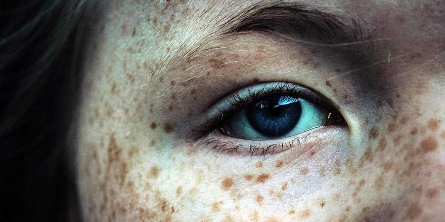 cancer de piele la ochi)