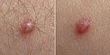 benign cancer of breast