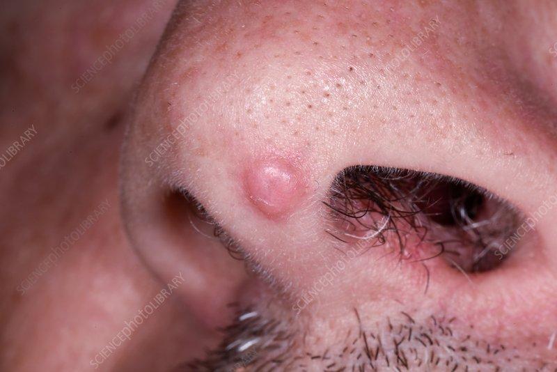 what is benign squamous papilloma)