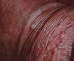 hpv sintomi maschili