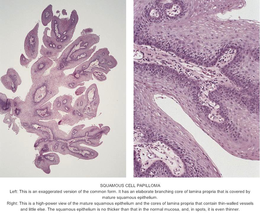 skin papilloma histopathology