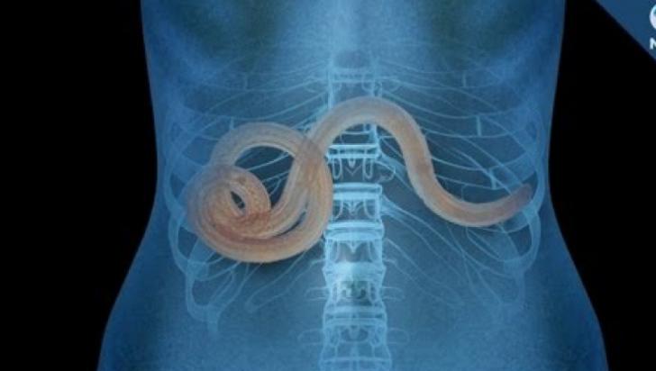 paraziti in corpul uman simptome