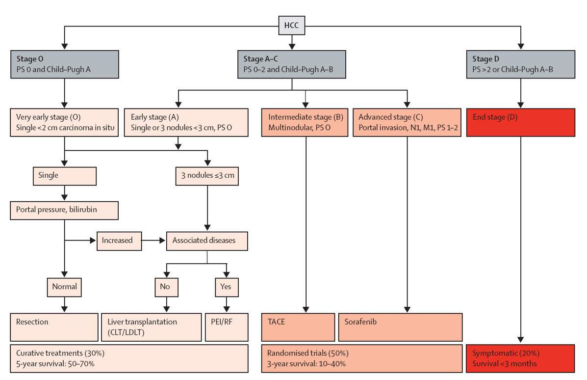hepatocellular cancer treatment guidelines)