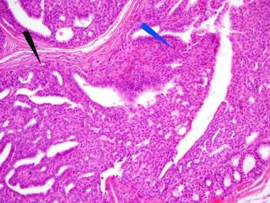 intraductal papillomas example)