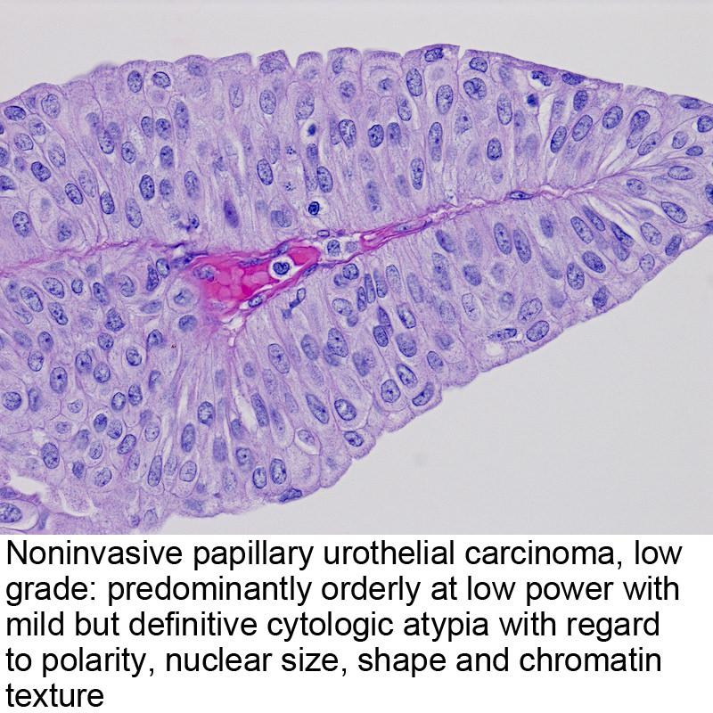 papillary urothelial carcinoma ureter)