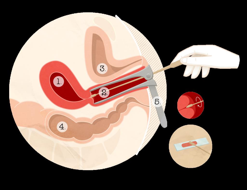 infecțios - Traducere în franceză - exemple în română   Reverso Context