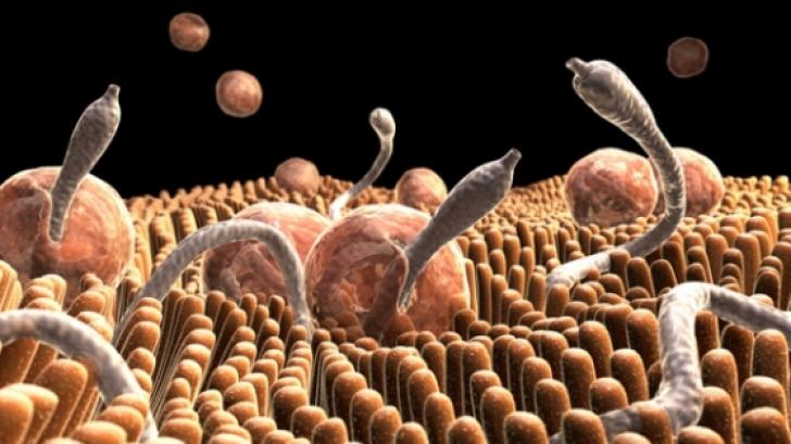 parazitii intestinali provoaca constipatie)