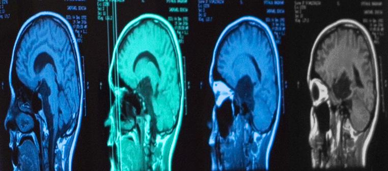 cancer pulmonar metastaze cerebrale)
