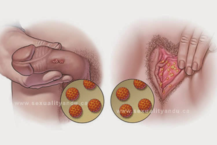cancer de ano por papiloma