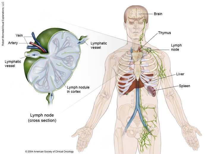 10 lucruri esentiale despre limfomul non-Hodgkin