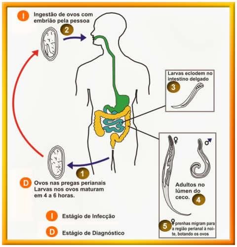 oxiurose agente causador sintomas tratamento