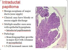 intraductal papilloma pathophysiology)