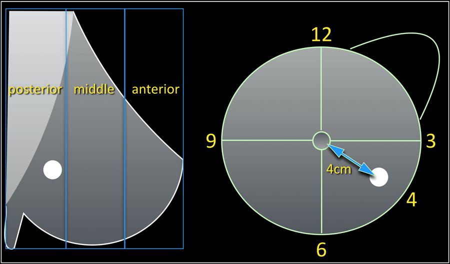 intraductal papilloma size