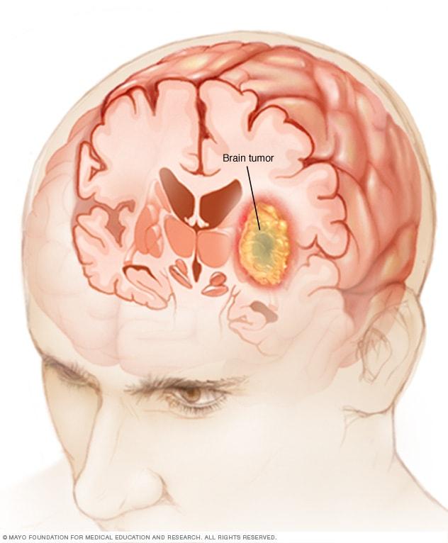 cancer cerebral sintomas y causas)
