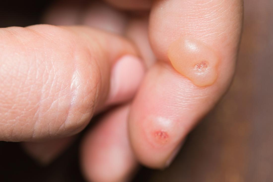 warts on hands painful)
