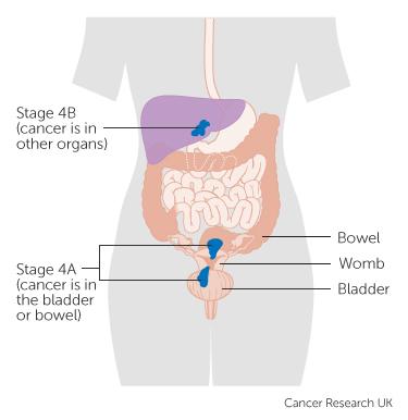 uterine cancer end stage
