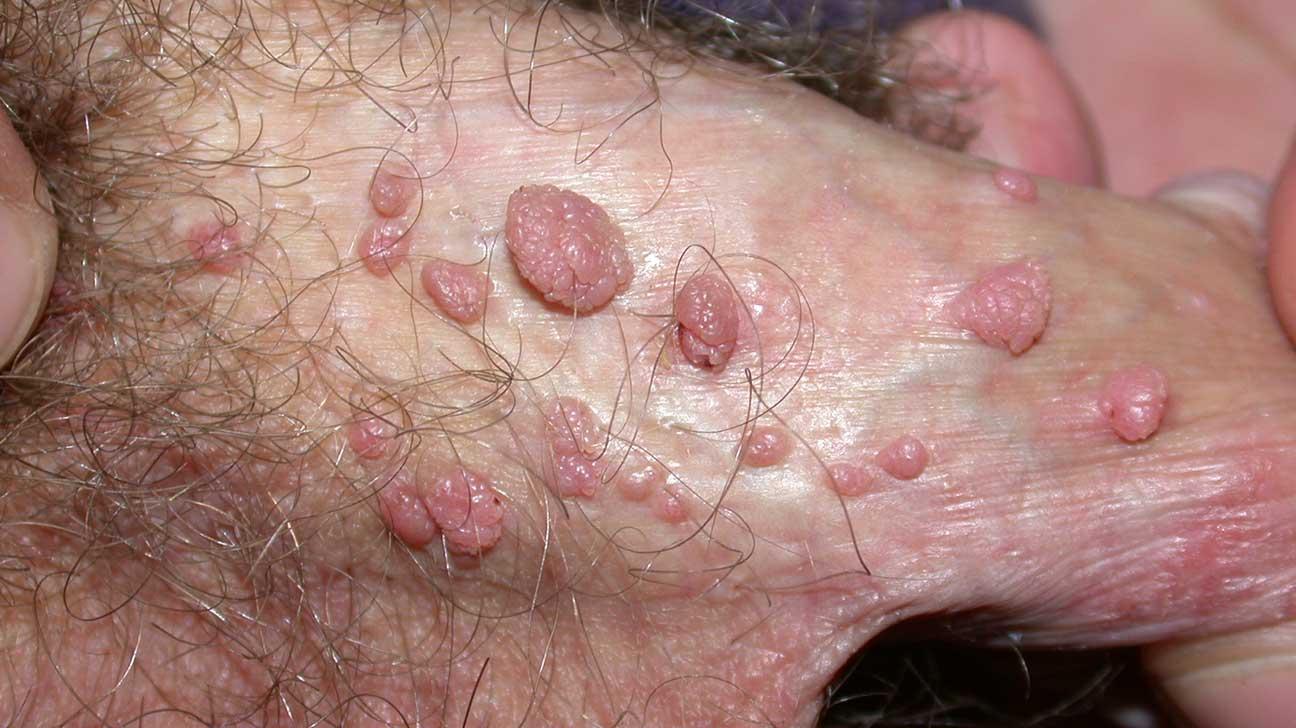 skin papilloma nhs